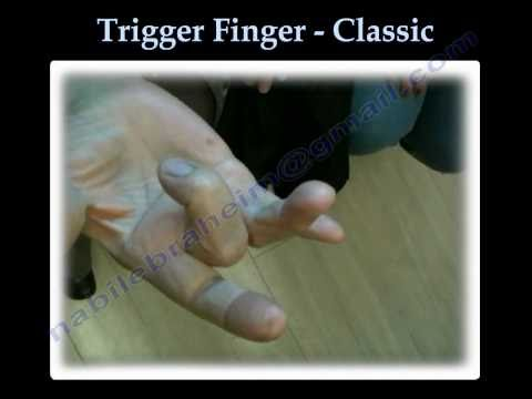 Trigger Finger Classic - Everything You Need To Know - Dr. Nabil Ebraheim