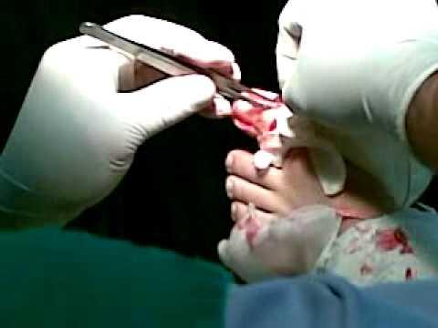 Onicocriptosis vivirial