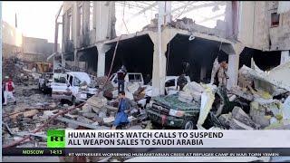 1.5 million children severely malnourished as humanitarian crisis grips Yemen (DISTURBING) - RUSSIATODAY
