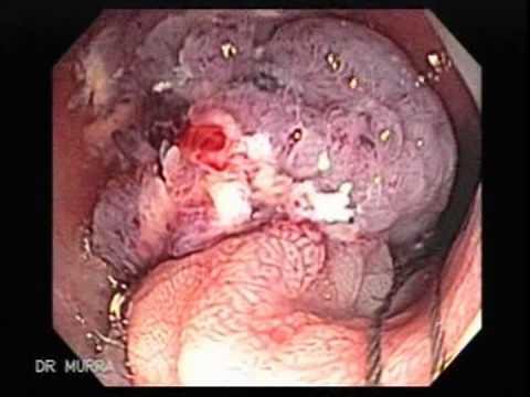 Polipectomia Polipo Gigante del Sigmoides