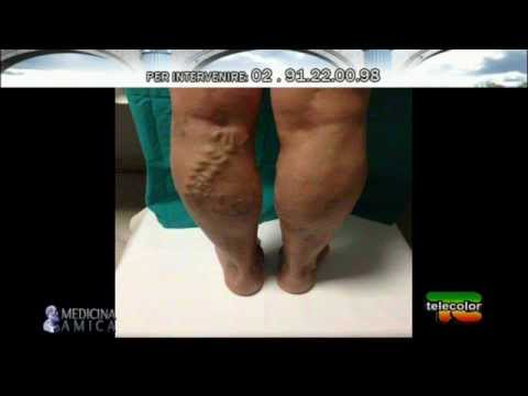 Medicina Amica: Vene varicose, terapia consrvativa o demolitiva? - 2°parte