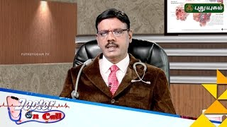 Doctor On Call 04-01-2017 Puthu Yugam tv Show