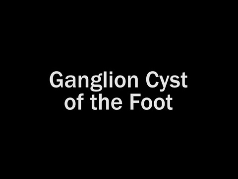 Ganglion Cyst of the Foot