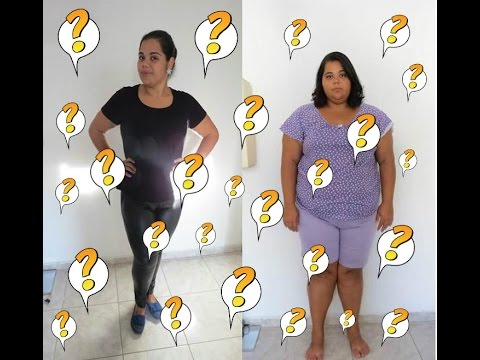 Pergunta após Cirurgia Bariátrica | Flacidez,Dieta,Arrependimento,Mudança,Rotina.