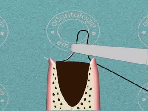 Como fazer sutura - Odontologia