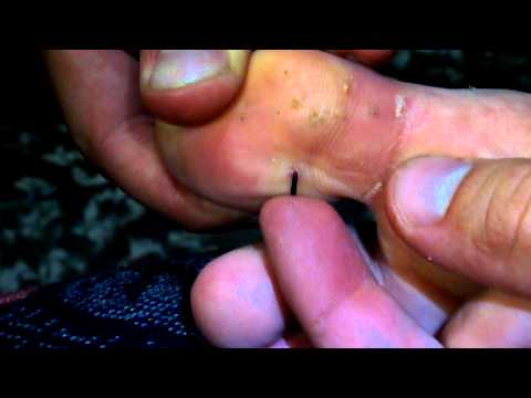squeezing out sea urchin needles