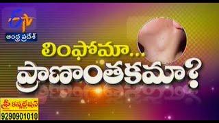 Sukhibhava - సుఖీభవ - 17th October 2014 - ETV2INDIA
