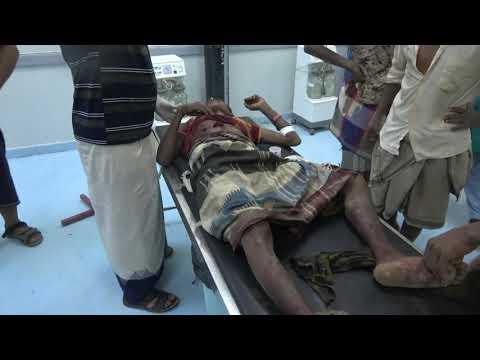 إصابة شاب برصاص مليشيات الحوثي في منطقة الجبلية جنوب الحديد