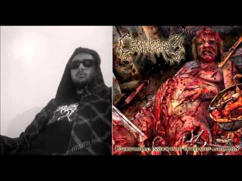 Uterovaginal Insertion of Extirpated Anomalies Vocal cover by mustapha filimontsev