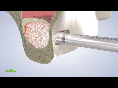Post Operative Instructions: Sinus Lift Procedure - Utah Surgical Arts   Provo UT