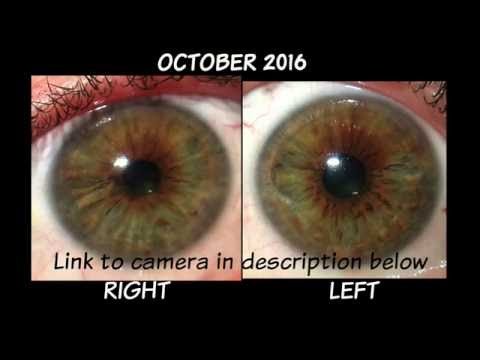 6 Month Iris Comparison April-October 2016 Iridology Review Dr. Robert Morse ND