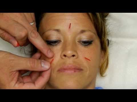 Treat Allergies & Sinuses with Acupuncture