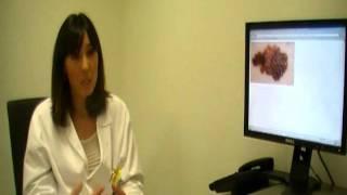 Melanoma: prevención y detección