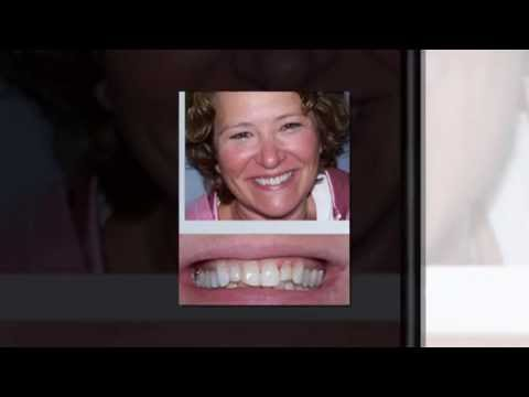 Porcelain Veneers Scottsdale Cosmetic Dentist