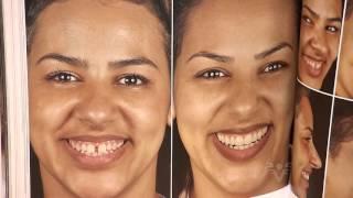 Dra. Rose Marques fala sobre lentes de contato dental no Viver Bem - TV Tribuna