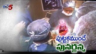 Care Hospital Rare Operation : TV5 News - TV5NEWSCHANNEL