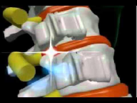 Tratamientos para la hernia discal