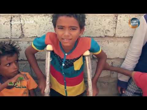 حديث القرى   دعم الهلال الأحمر الإماراتي بمواجهة انتهاكات الحوثي.. الحلقة الكاملة(17سبتمبر)