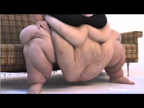 World s Fattest Woman 728 lbs Susanne Eman