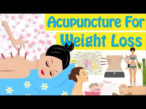 Acupuncture For Weight Loss How Does Acupuncture Work