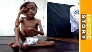 Inside Story - How can Yemen's humanitarian crisis be solved? - ALJAZEERAENGLISH