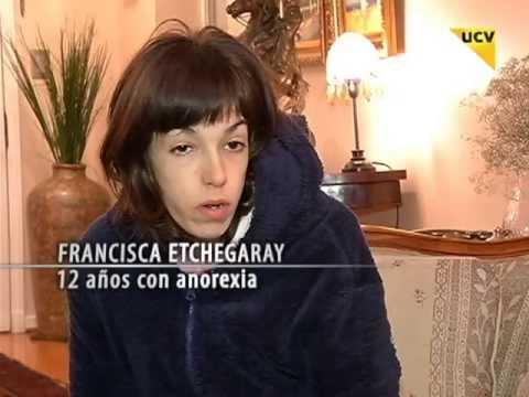 UCVTV REPORTAJES ANA Y MIA (ANOREXIA)  (19 JUNIO 2013)