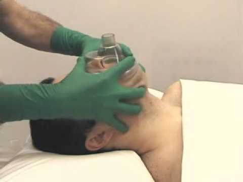 BAG MASK VENTILATION - Positive-Pressure Ventilation