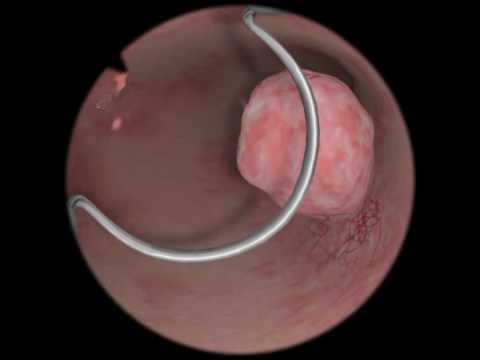 Polypectomy / Polyp Removal - Virtual Reality Simulation for Endoscopic Surgery