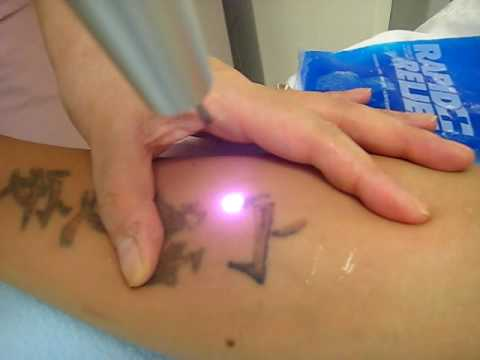 Is there a scar with laser tattoo removal, Arizona, tattoo removal cost,