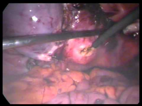 Total Laparoscopic Hysterectomy  Easy stepsTLH dr abdul vahab