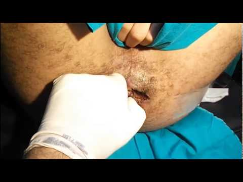 Perianal Fistula: Simplest Cure (HD) ناسور شرجي بلا نزبف ولا ألم