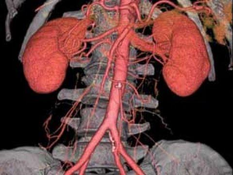 ¿Cómo evitar enfermarnos de los riñones? / Nuestro Día