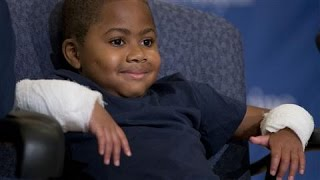 Youngest Patient Receives Double-Hand Transplant - WSJDIGITALNETWORK