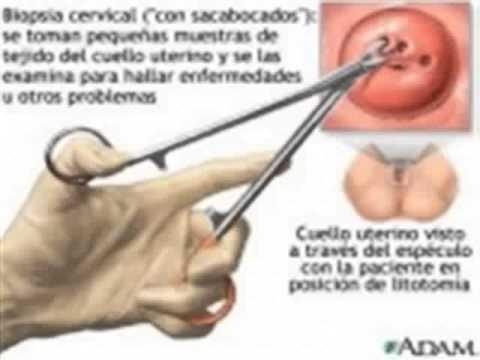 Qué es una biopsia de cuello uterino