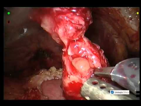 ENDOMETRIOSIC URETERAL STRICTURE.