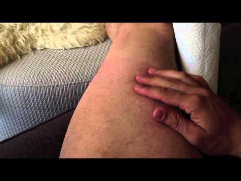 Tratando a Virilha! parte 02