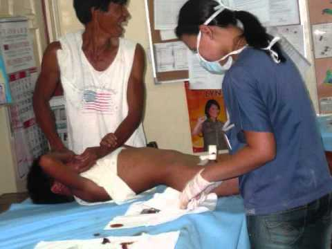 MEDICAL MISSION AT ISABELA.wmv