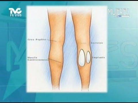 Implantes de Pantorrillas (METVC)