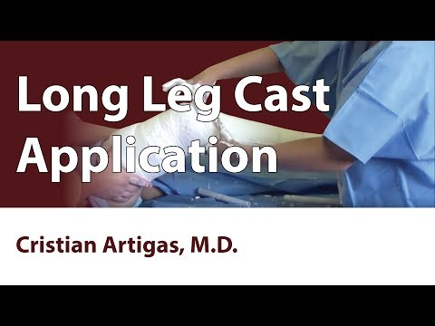 Long Leg Cast Application