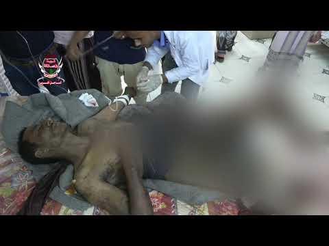 إصابة مواطن وطفلته بجروح خطيرة بإنفجار لغم حوثي داخل منزلهم في الدريهمي بالحديدة