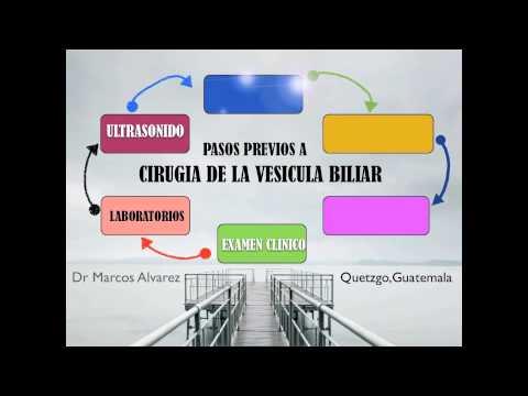 OPERACION POR PIEDRAS EN LA VESICULA, 6 PASOS PREVIOS