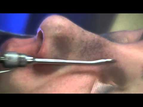 Dr Power Tools: Power Tools for Rhinoplasty