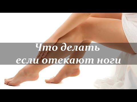 Что одевать если отекают ноги