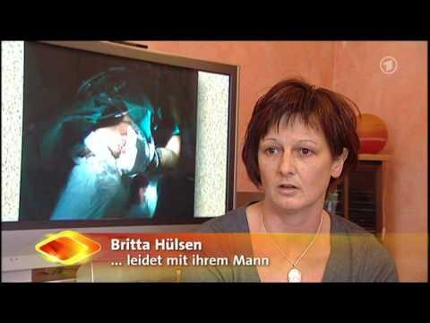 ARD Brisant (Phantomschmerz).mpg