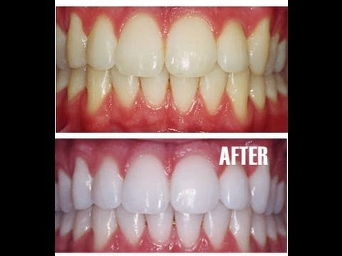 Teeth Whitening at Home with Baking Soda - Amazing Results!