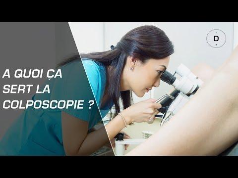 A quoi sert la colposcopie ? - Gynécologie