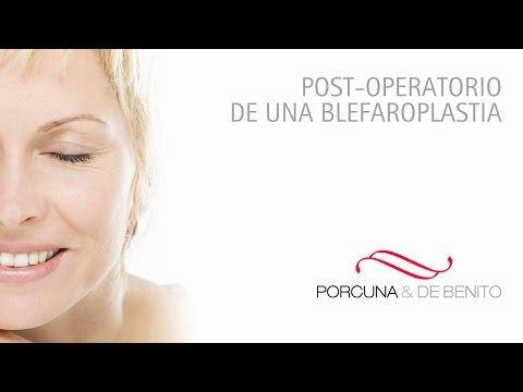 Post-operatorio de una blefaroplastia