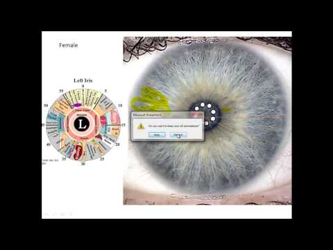 Iridology Review- How To Read Your Eyes For Health