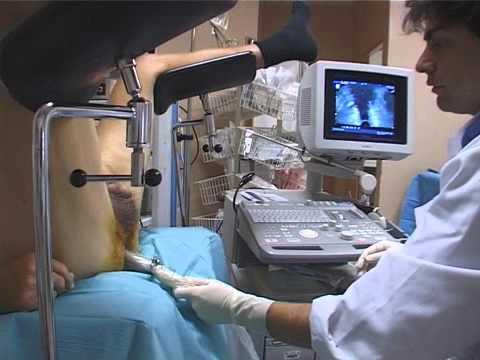 Réalisation des Biopsies Echoguidées de la Prostate au CHU Mondor par le Pr A de la Taille