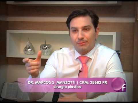 DR MARCOS - Ginecomastia